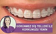 Görünmez Diş Telleri İle Sağlıklı Dişlere Kavuş